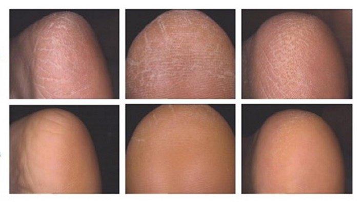 Крем для очень сухой кожи